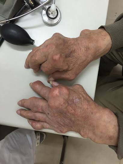 Bệnh Gout và nỗi lo sợ kinh hoàng