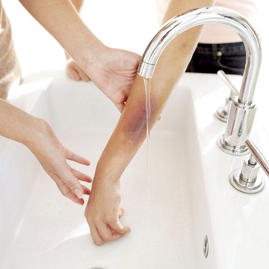 Cách chữa bỏng nước sôi hữu hiệu nhất là ngâm chỗ bỏng vào nước hoặc để dưới vòi nước chảy.