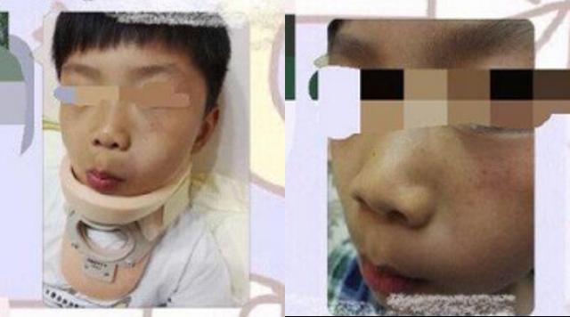 Hình ảnh bé trai phải nằm viện điều trị vị bị bán thoát vị đốt sống cổ.