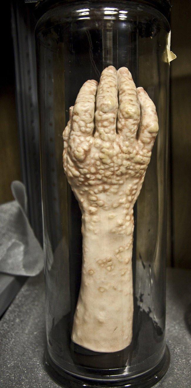 Bảo tàng Mütter ở bang Pennsylvania của Mỹ là một trong những nơi đáng sợ  nhất thế giới. Đây là nơi lưu giữ, trưng bày những bộ phận cơ thể, ...