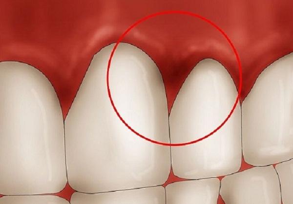 Các chất tẩy trắng chứa trong kem đánh răng có thể gây viêm nướu.