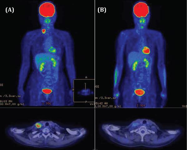Chụp PET/CT phát hiện được khoảng 80% các loại ung thư và hỗ trợ việc đánh giá hiệu quả của các phương pháp điều trị