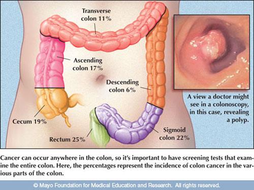 Hình ảnh polyp trong đại tràng, đây là một nguy cơ gây ung thư.