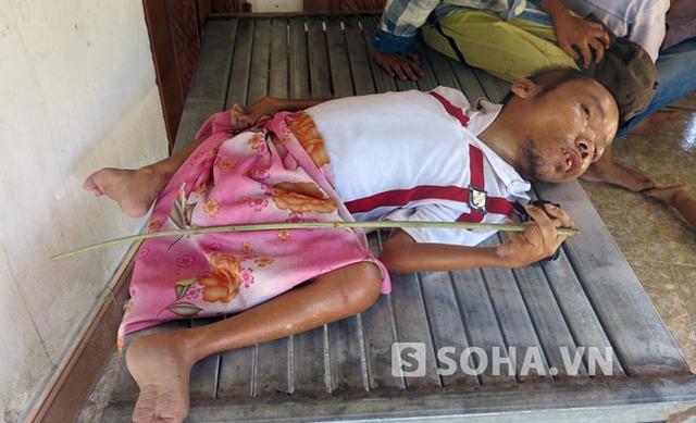 Anh Nguyễn Bá Cường bị tàn tật bẩm sinh đau đớn kể lại sự việc mình bị bà Hoa lừa vay toàn bộ số tiền 30 triệu đồng mà các nhà hảo tâm ủng hộ.