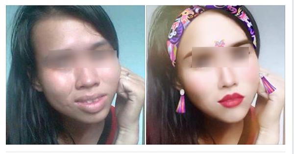 """Cô gái có gương mặt đầy khuyết điểm được chỉnh sửa """"xinh lung linh"""" nhờ phần mềm điện thoại"""