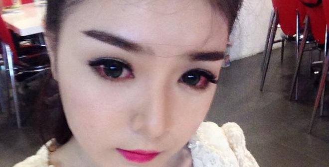 Hot girl Lily Luta viêm mắt nặng vì đeo lens