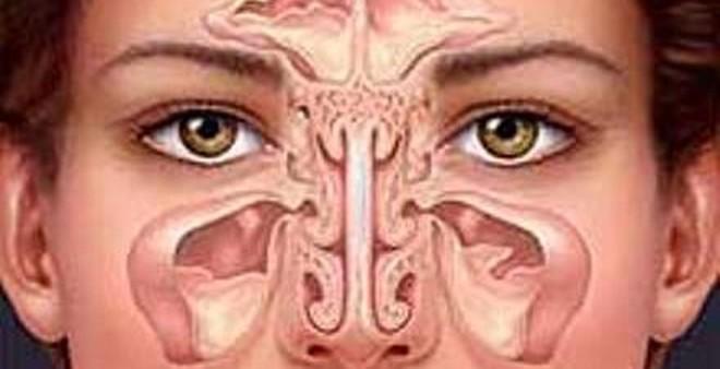 Viêm mũi xoang lâu năm, có thể trị dứt bằng thảo dược này