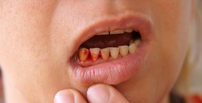 Kết quả hình ảnh cho Khi chân răng có mủ là dấu hiệu của bệnh lý gì