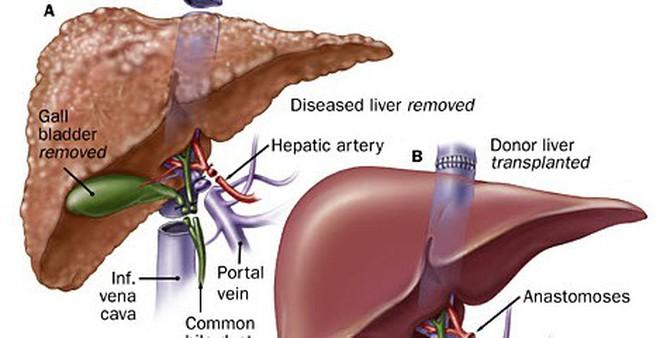 Cách giải độc gan không cần đến thuốc