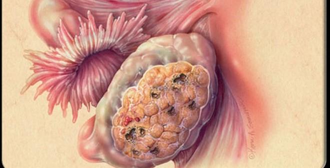 Top 10 căn bệnh ung thư nguy hiểm nhất thời đại