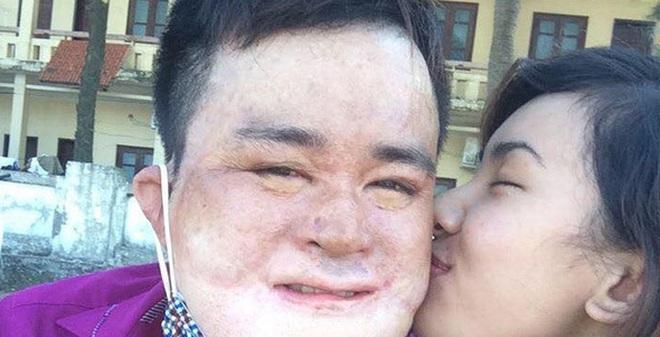 Chuyện tình cảm động của chàng trai bỏng nặng đến biến dạng khuôn mặt và cô gái Bắc Giang xinh đẹp