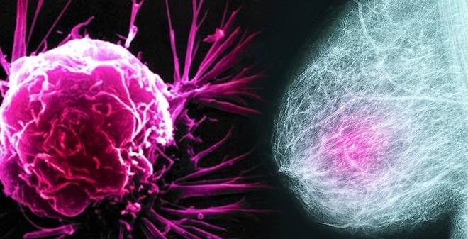"""""""Tôi bị ung thư vú do không có con"""": Nguyên nhân ít ai ngờ tới"""