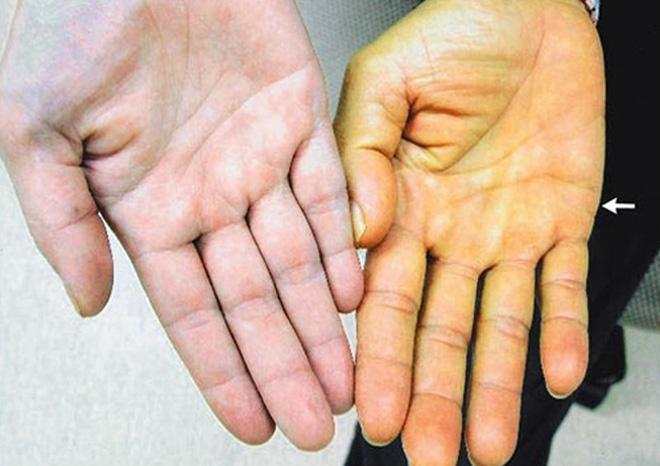 Những dấu hiệu cảnh báo bệnh gan nhiễm mỡ - Ảnh 3.