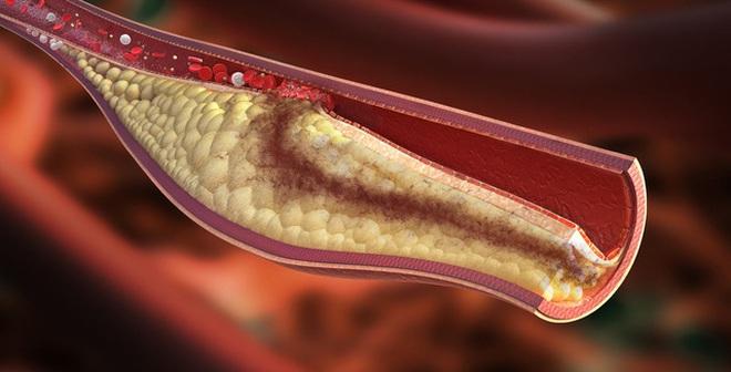 Cholesterol cao rất nguy hiểm, đây là 10 lời khuyên giúp bạn phòng tránh