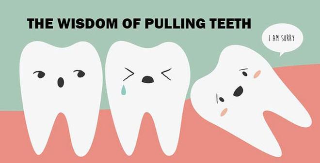 Răng khôn thực sự rất...