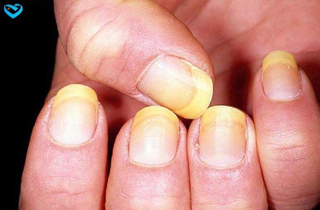 Nếu có 1 trong 16 triệu chứng này, phải khám ung thư ngay lập tức - Ảnh 3.
