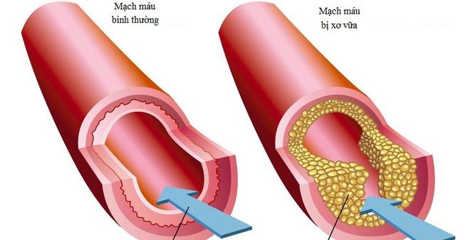 Bệnh tim mạch: Căn bệnh giết người nhiều hơn cả bệnh ung thư