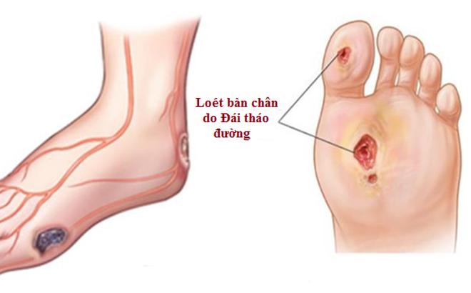 Căn bệnh khiến 150 nghìn người bị cắt cụt chân mỗi năm: Ai cũng cần biết để phòng tránh