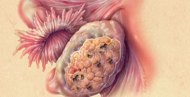 Dấu hiệu sớm phát hiện ung thư buồng trứng