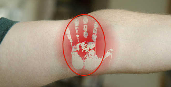 Vỗ vào lõm khuỷu tay: Tuyệt chiêu cứu bệnh nhân lên cơn đau tim