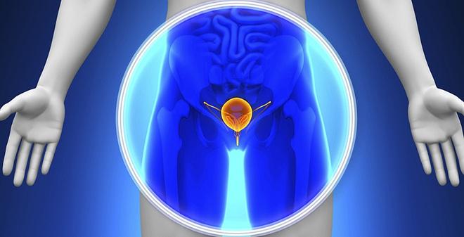 Cảnh báo về tình trạng chẩn đoán quá mức ung thư tuyến tiền liệt