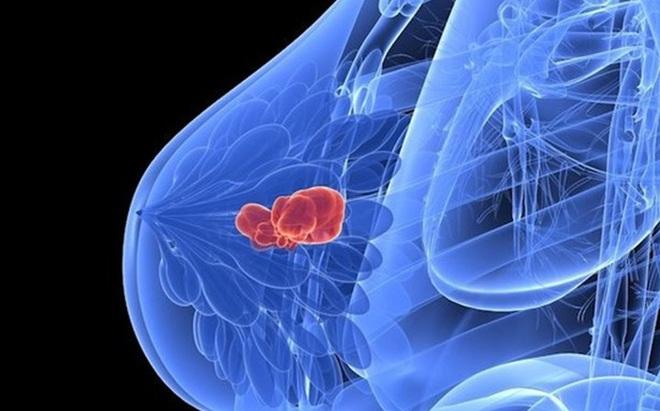 [Video] Bác sĩ tư vấn phòng ngừa, phát hiện sớm ung thư vú