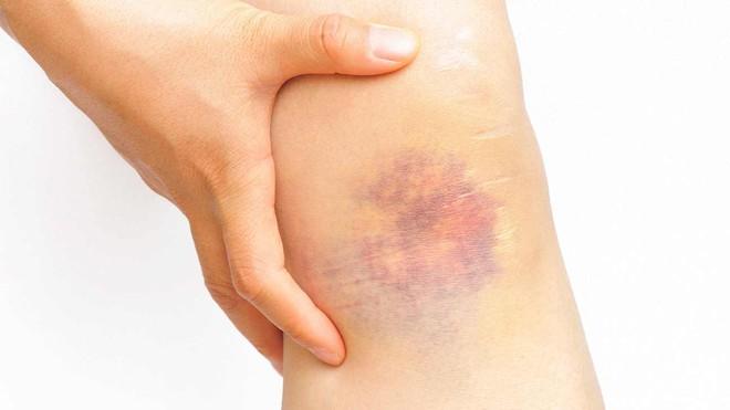 Thấy vết bầm tím trên da mãi không khỏi, hãy cảnh giác với những căn bệnh sau - Ảnh 2.