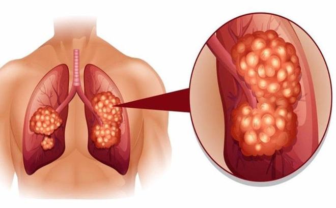 Kết quả hình ảnh cho ung thư phổi