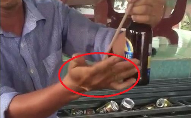 Clip: Người đàn ông trổ tài mở nắp bia bằng đũa và cái kết đắng
