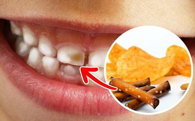 Nếu bạn vẫn làm những việc này hàng ngày thì đừng hỏi tại sao bị sâu răng, viêm lợi