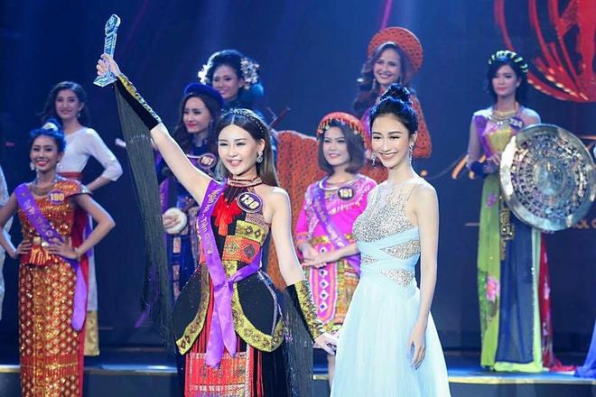 Tân Hoa hậu Đại dương 2017 thừa nhận từng phẫu thuật thẩm mỹ - Ảnh 11.