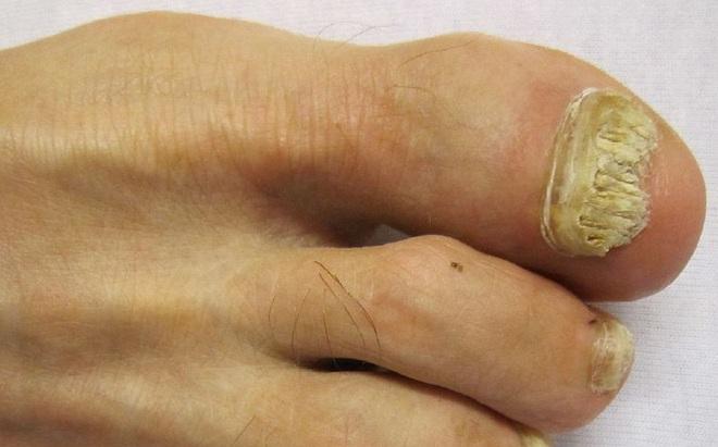 Những dấu hiệu ở móng chân, móng tay bạn nhất định phải để ý kẻo mang bệnh không biết