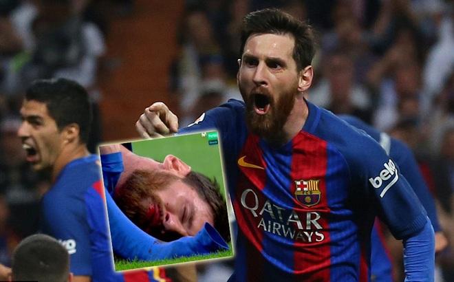 Messi: Nỗi bất công cùng cực, cú đánh hộc máu mồm và 2
