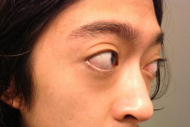 Mắt có một trong các dấu hiệu này, hãy cảnh giác nguy cơ mắc 9 loại bệnh nguy hiểm - Ảnh 3.