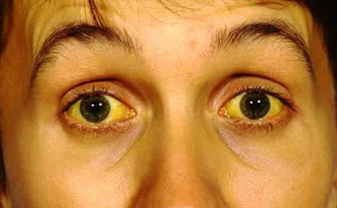 Mắt có một trong các dấu hiệu này, hãy cảnh giác nguy cơ mắc 9 loại bệnh nguy hiểm