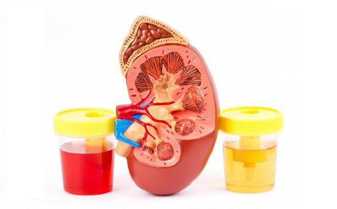 Nước tiểu thay đổi màu, đau lưng dưới...  bác sĩ khuyên nên đi khám ngay kẻo ung thư