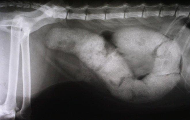6 dấu hiệu không gây đau nhưng cảnh báo ung thư dạ dày: Đừng để bệnh nặng mới phát hiện ra - Ảnh 2.