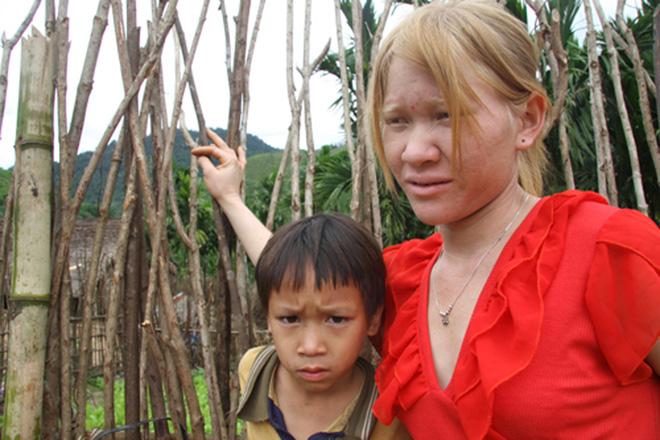 Kỳ lạ chị em người Ca Dong ở Quảng Nam bị xua đuổi, nhà chồng chì chiết vì giống hệt Tây - Ảnh 2.