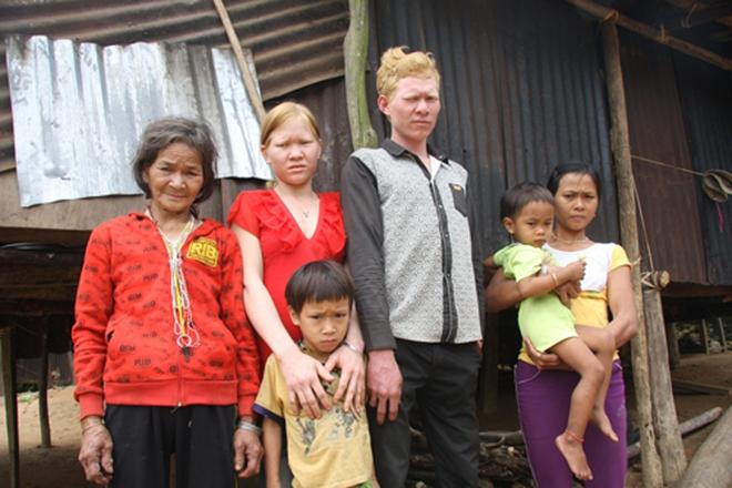 Kỳ lạ chị em người Ca Dong ở Quảng Nam bị xua đuổi, nhà chồng chì chiết vì giống hệt Tây - Ảnh 3.