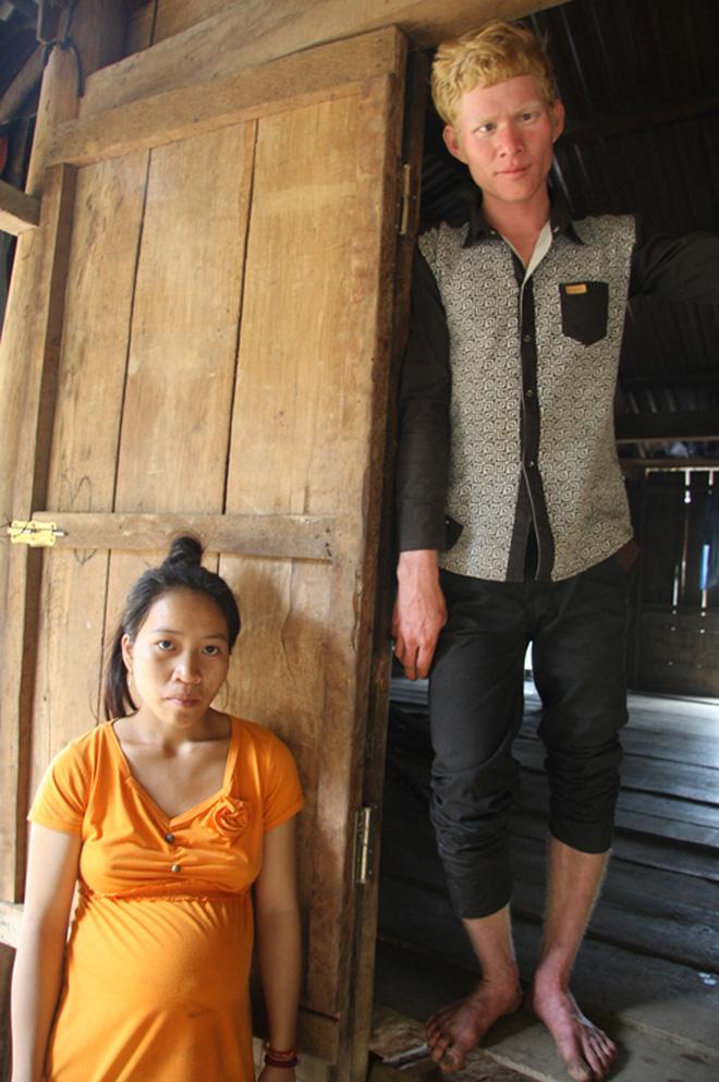 Kỳ lạ chị em người Ca Dong ở Quảng Nam bị xua đuổi, nhà chồng chì chiết vì giống hệt Tây - Ảnh 4.