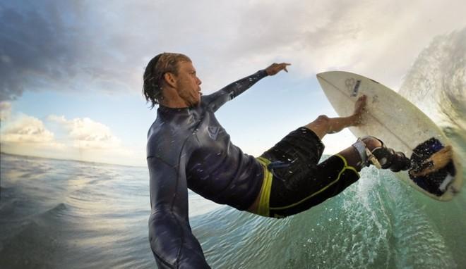 Đây là cách 1 người đối xử với loài cá mập sau khi bị chính chúng... cắn đứt chân - Ảnh 1.