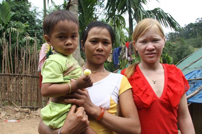 Kỳ lạ chị em người Ca Dong ở Quảng Nam bị xua đuổi, nhà chồng chì chiết vì giống hệt Tây - Ảnh 5.