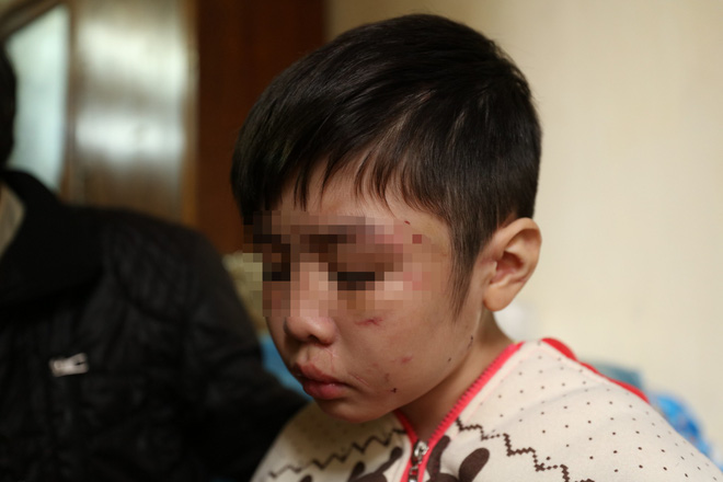 Bé trai 10 tuổi bị bạo hành: Mẹ kế thừa nhận việc đánh con riêng của chồng - ảnh 1