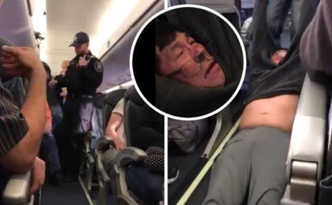 Vì đâu United Airlines cư xử thô bạo, lôi bác sỹ gốc Việt ra khỏi máy bay?