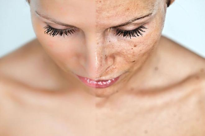 Chuyên gia chăm sóc da chỉ rõ 3 sai lầm khi dùng kem chống nắng của phụ nữ Việt - Ảnh 2.