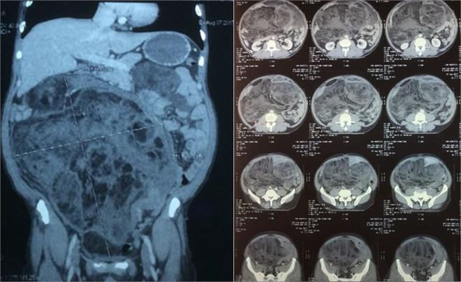 Cắt bỏ khối u khủng chiếm trọn ổ bụng cùng nửa đại tràng phải - Ảnh 1.