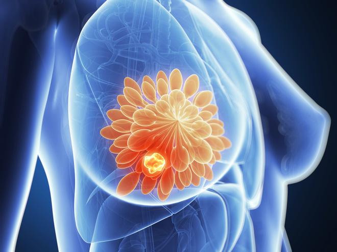 Cụ bà 70 tuổi ở Hà Nội sống khoẻ sau ung thư di căn: Niềm hy vọng cho bệnh nhân ung thư vú - Ảnh 2.