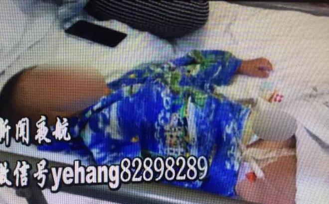 Bé trai 2 tuổi bị bỏng bộ phận sinh dục vì tè dầm khi ngủ trên thảm điện