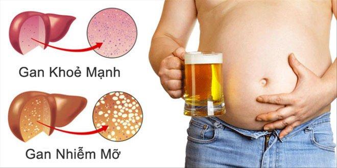 Sức khoẻ gan rất quan trọng: 6 dấu hiệu bệnh gan nhiễm mỡ bạn cần biết để phát hiện ngay - Ảnh 1.