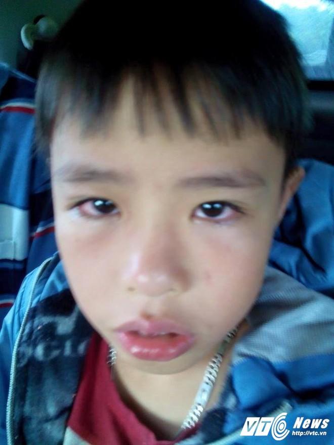 Phụ huynh vào trường đánh học sinh, hiệu trưởng ở Nghệ An nhập viện: Khởi tố vụ án - Ảnh 1.